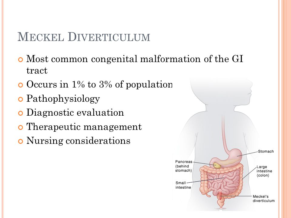 Meckel Diverticulum Most common congenital malformation of the GI tract. Occurs in 1% to 3% of population.