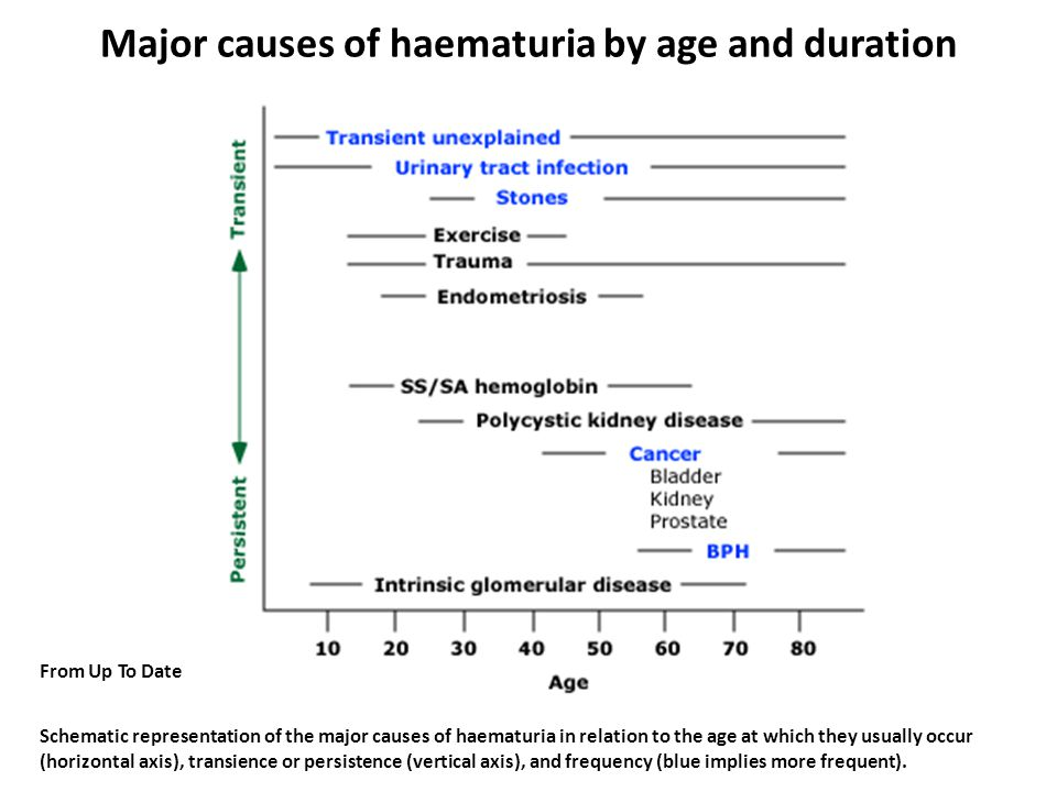 Major causes of haematuria by age and duration