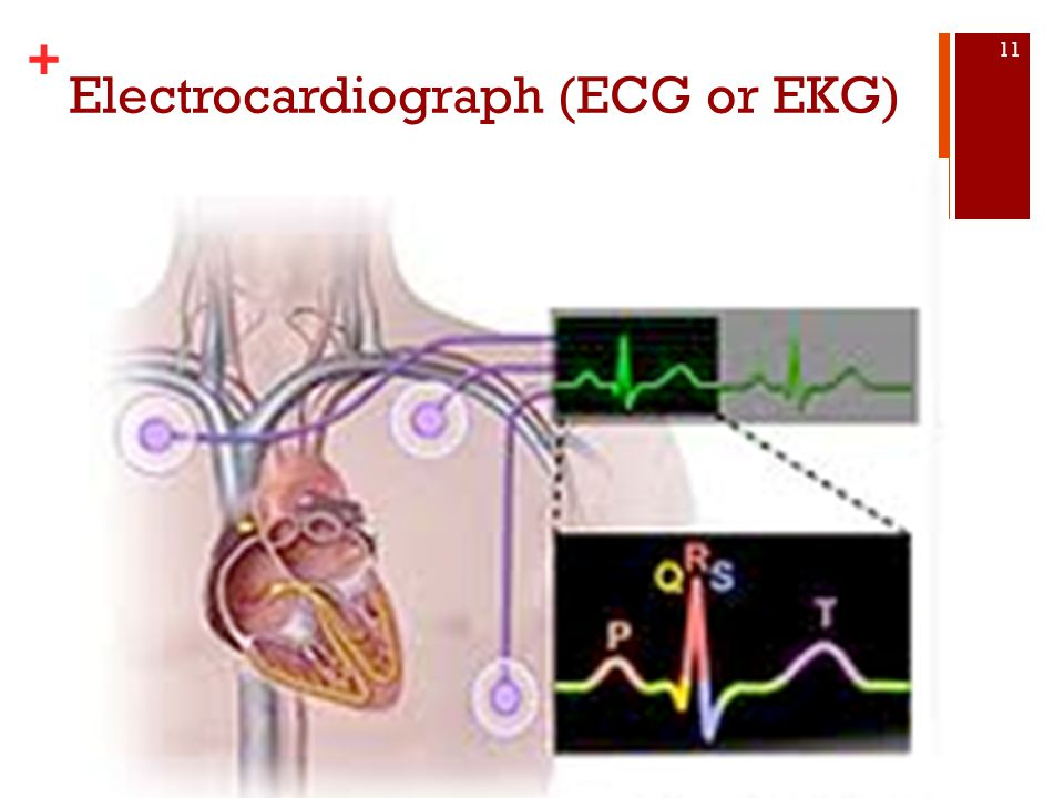 Electrocardiograph (ECG or EKG)