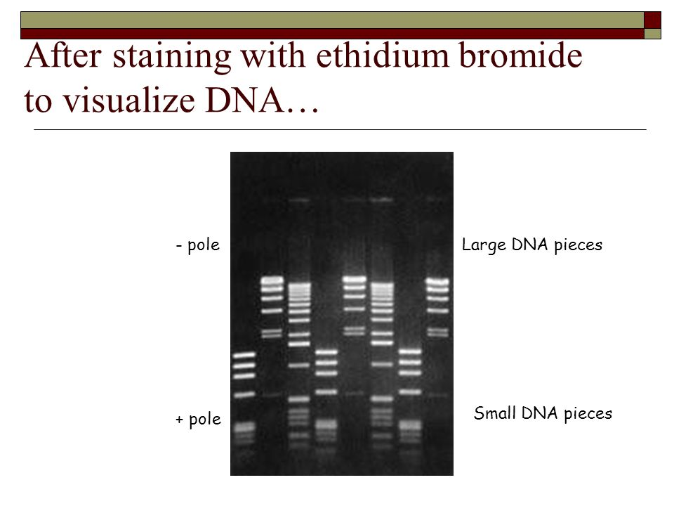 After staining with ethidium bromide to visualize DNA…