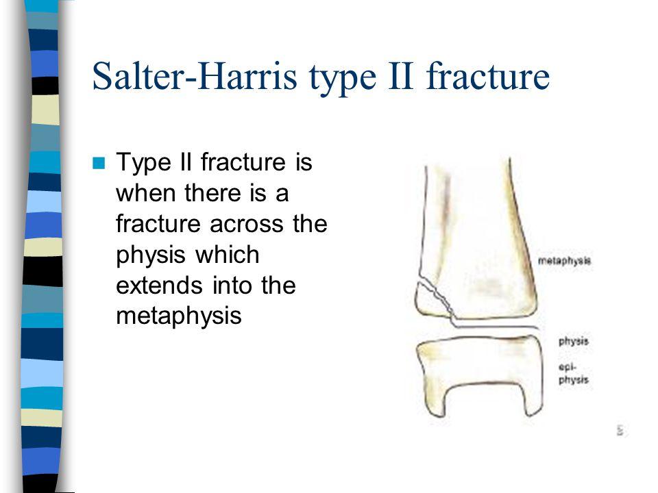 Salter-Harris type II fracture