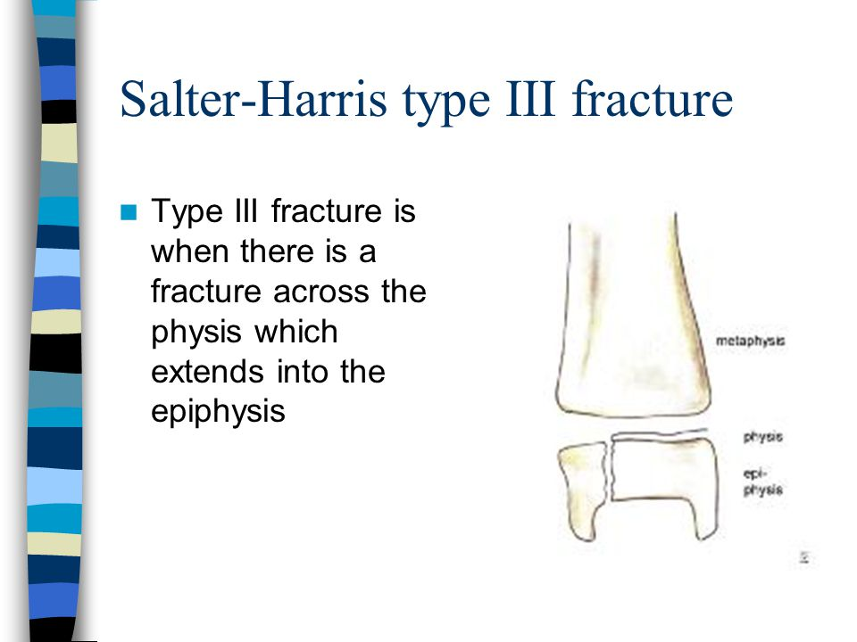 Salter-Harris type III fracture