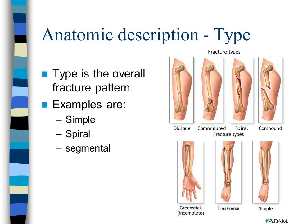 Anatomic description - Type