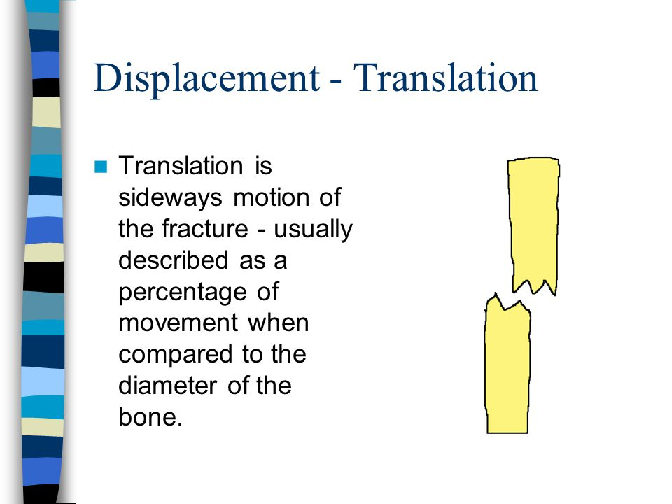 Displacement - Translation