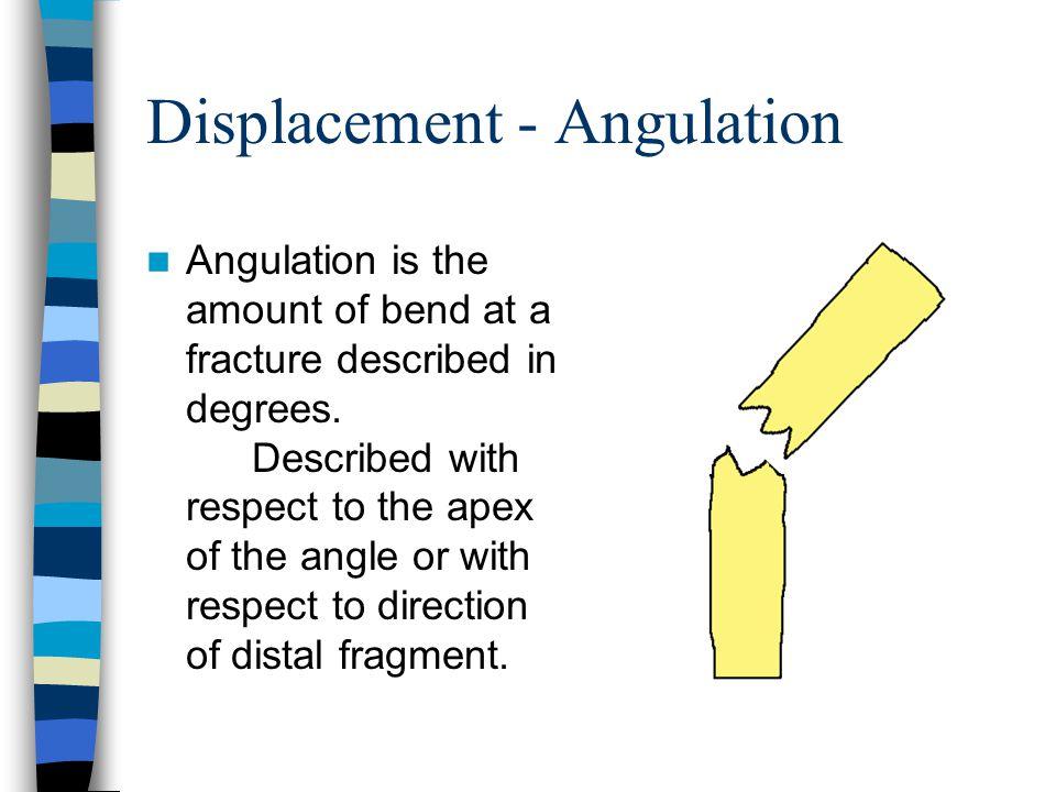 Displacement - Angulation