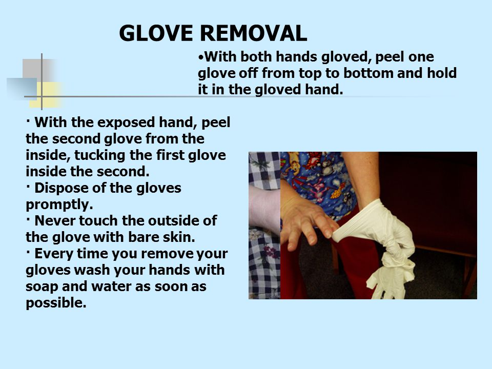 GLOVE REMOVAL With both hands gloved, peel one glove off from top to bottom and hold it in the gloved hand.