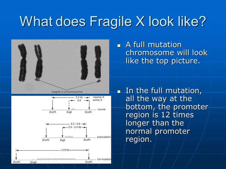 What does Fragile X look like