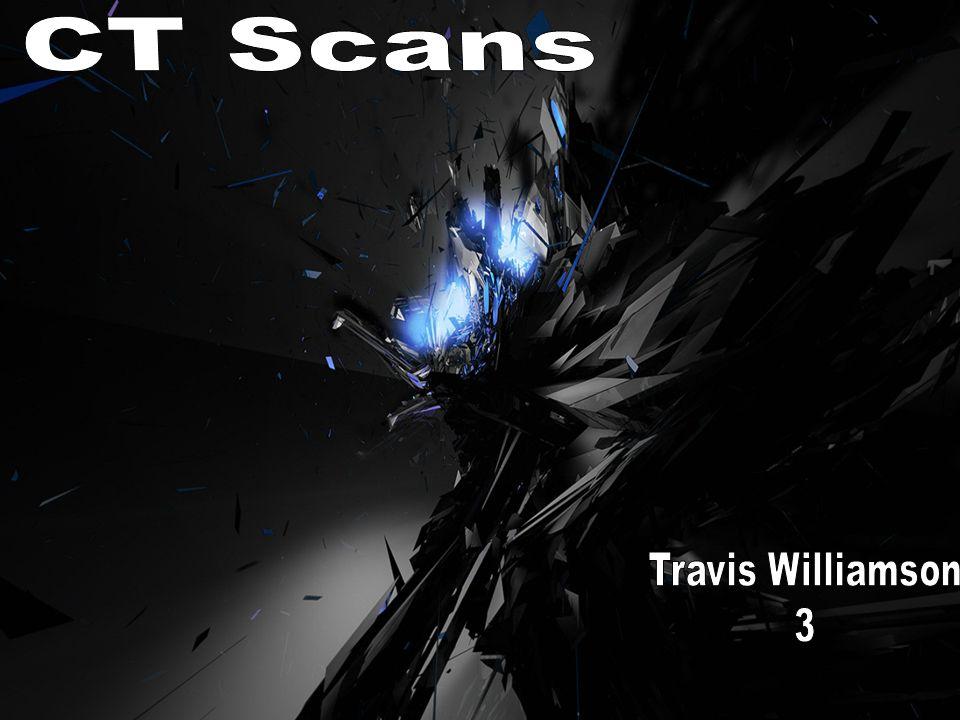 CT Scans Travis Williamson 3