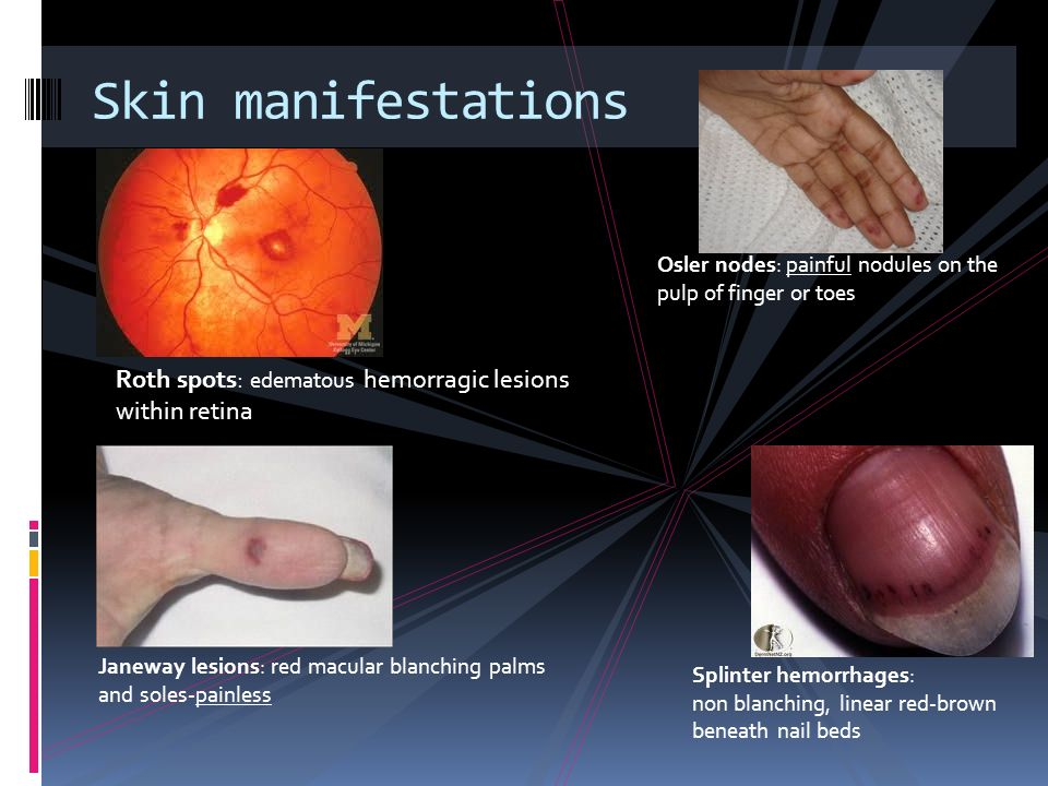 Skin manifestations Osler nodes: painful nodules on the pulp of finger or toes. Roth spots: edematous hemorragic lesions within retina.