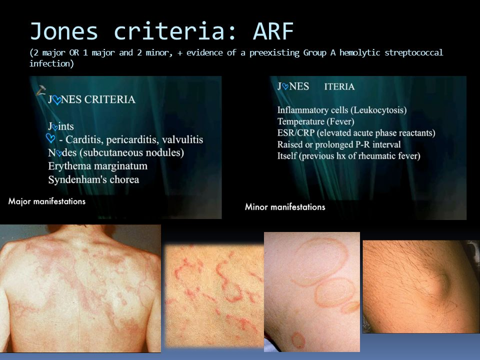 Jones criteria: ARF (2 major OR 1 major and 2 minor, + evidence of a preexisting Group A hemolytic streptococcal infection)
