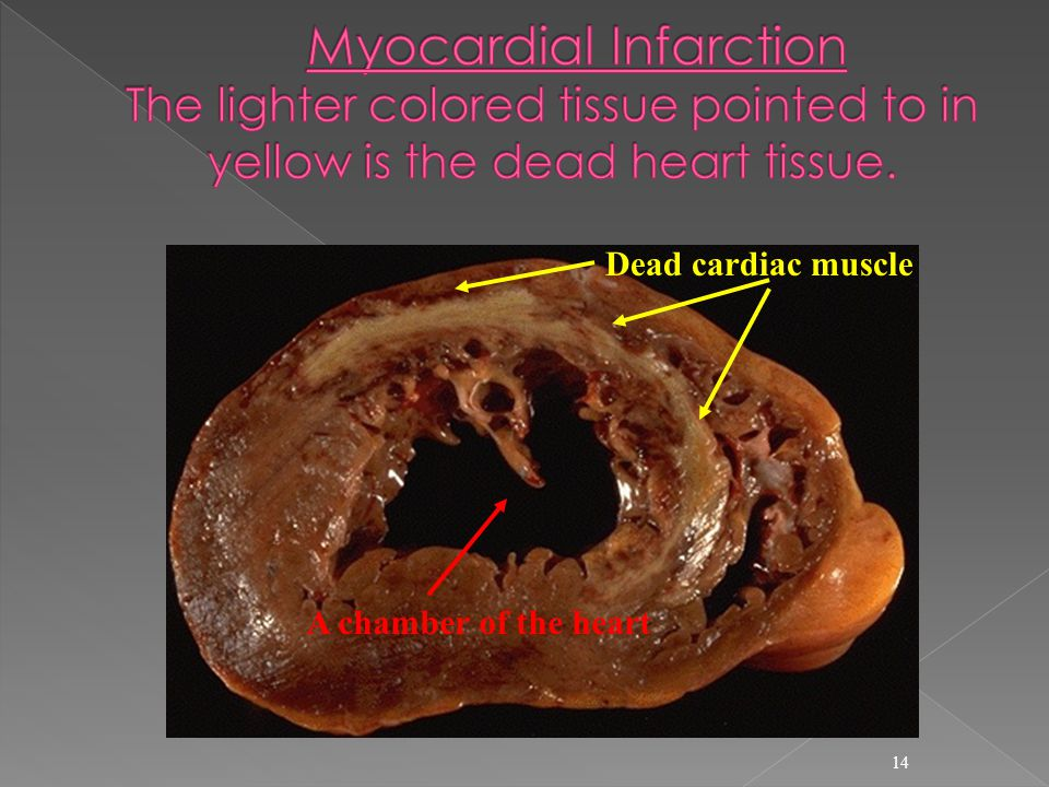 Myocardial Infarction The lighter colored tissue pointed to in yellow is the dead heart tissue.