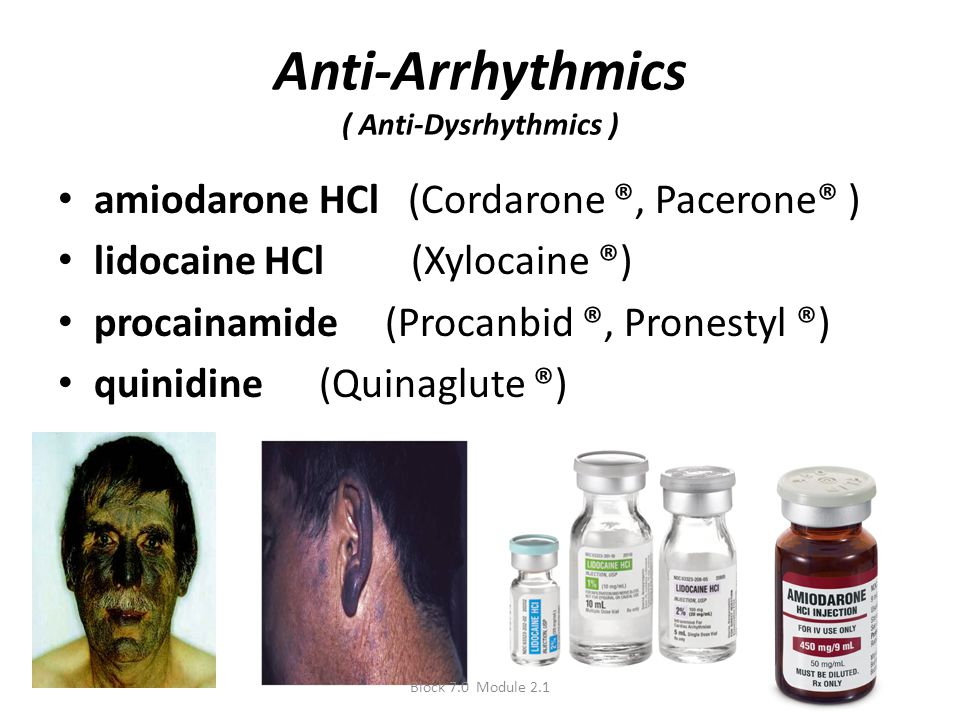 Anti-Arrhythmics ( Anti-Dysrhythmics )