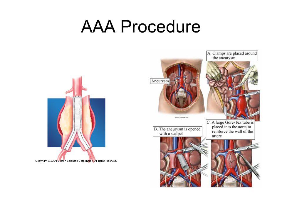 AAA Procedure
