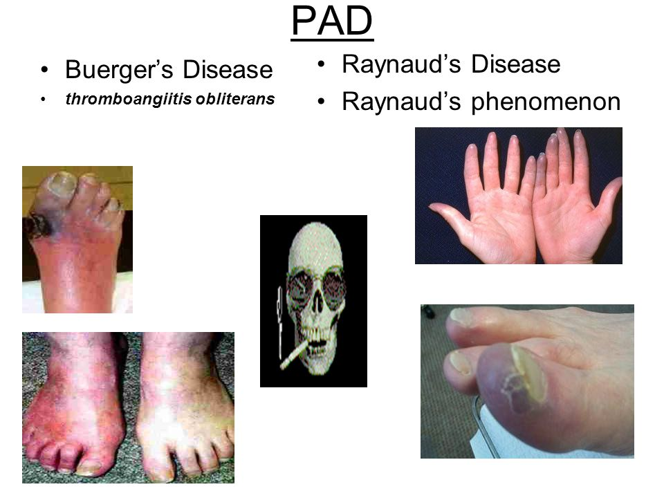 PAD Raynaud's Disease Buerger's Disease Raynaud's phenomenon