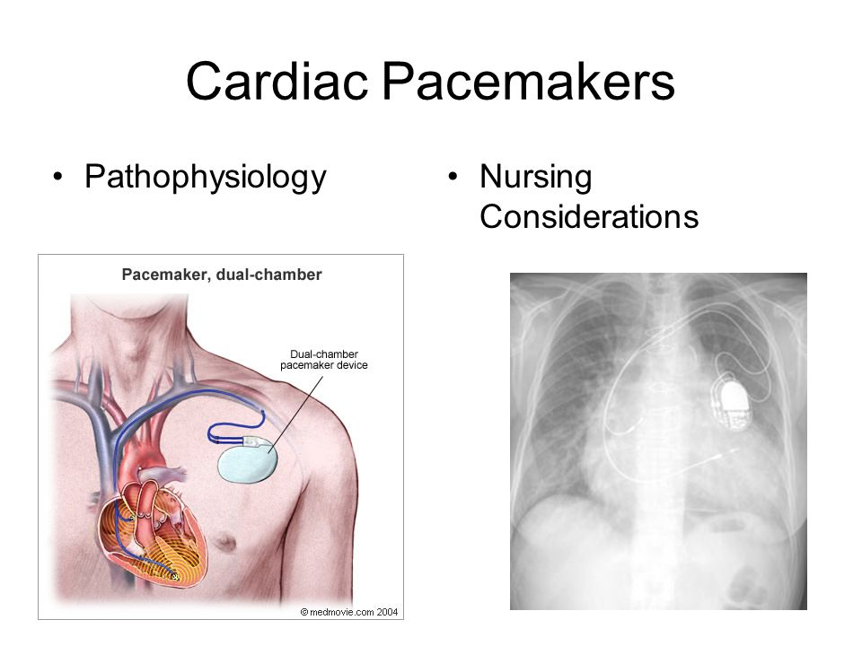 Cardiac Pacemakers Pathophysiology Nursing Considerations