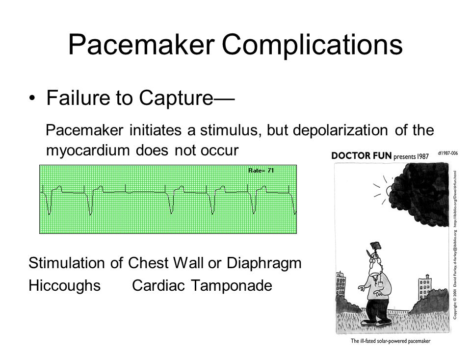 Pacemaker Complications