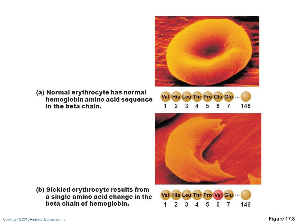(a) Normal erythrocyte has normal hemoglobin amino acid sequence