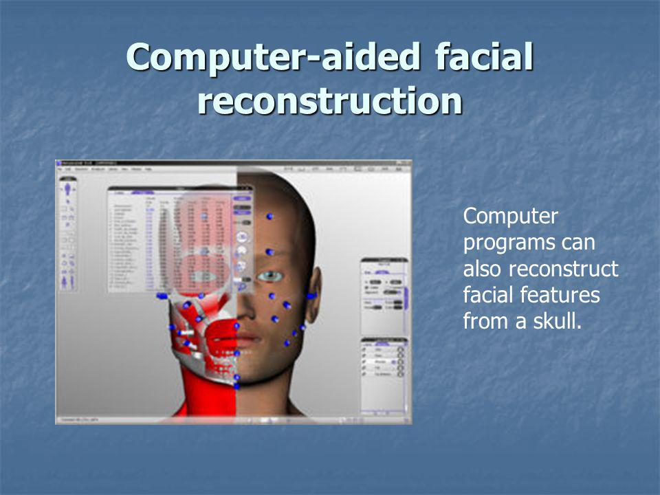 Computer-aided facial reconstruction