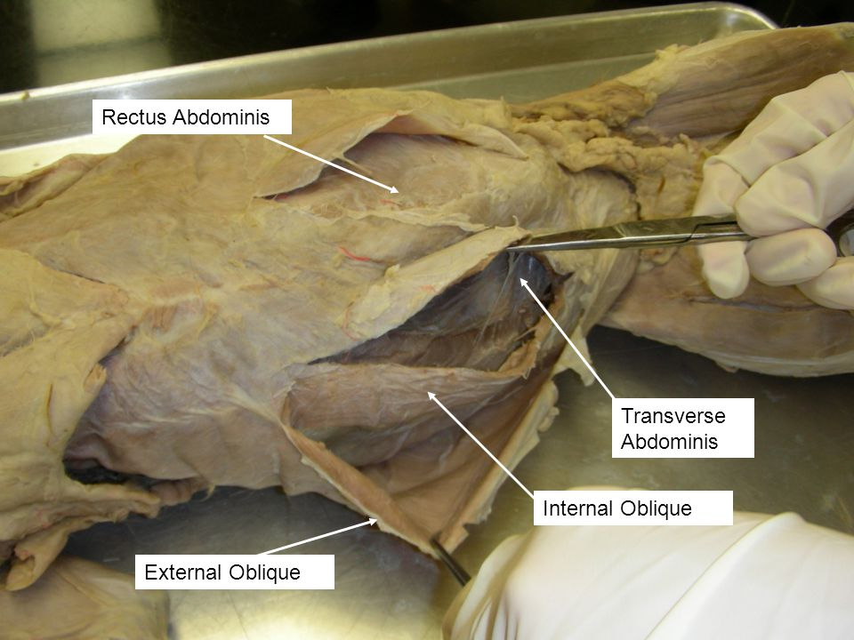 Rectus Abdominis Transverse Abdominis Internal Oblique External Oblique