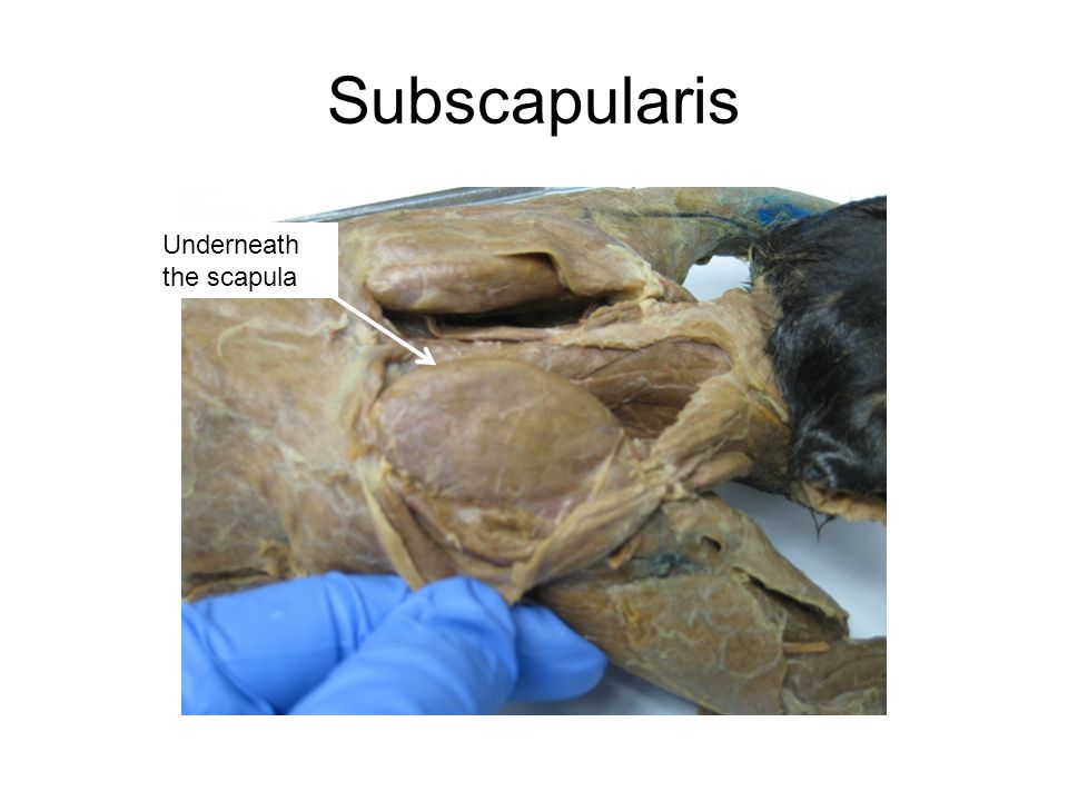 Subscapularis Underneath the scapula