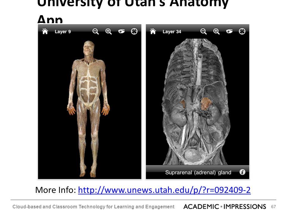 University of Utah's Anatomy App