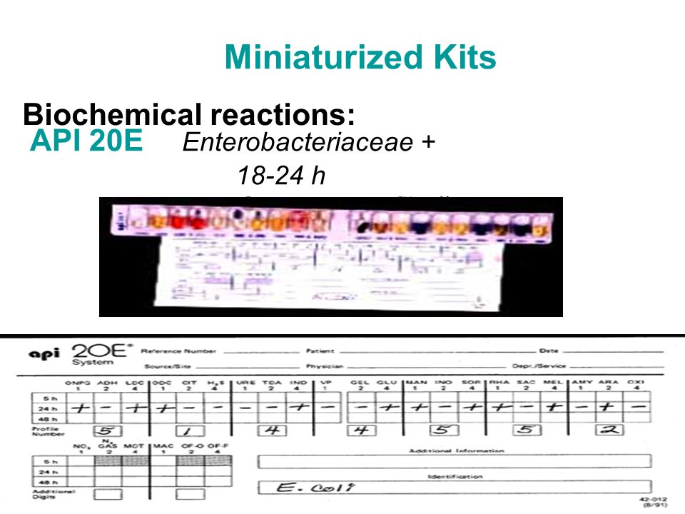 Miniaturized Kits Biochemical reactions: API 20E Enterobacteriaceae +