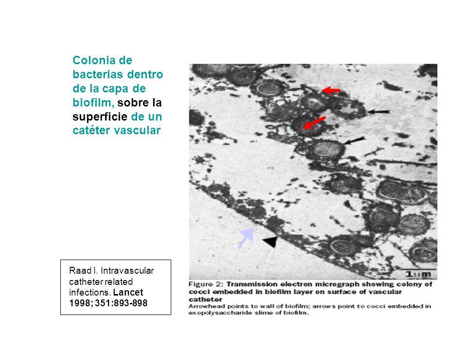 Colonia de bacterias dentro de la capa de biofilm, sobre la superficie de un catéter vascular