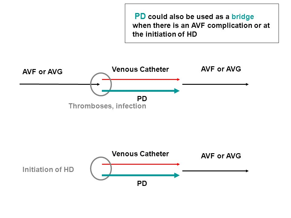 PD could also be used as a bridge when there is an AVF complication or at the initiation of HD