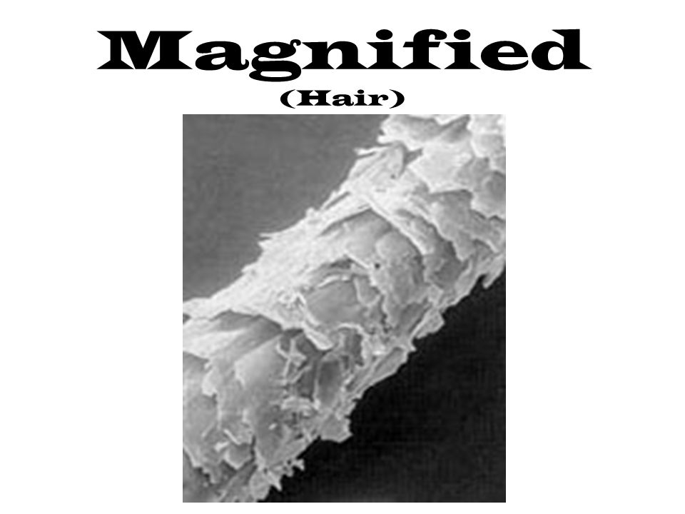 Magnified (Hair)