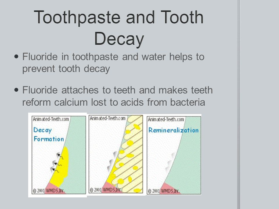 Toothpaste and Tooth Decay