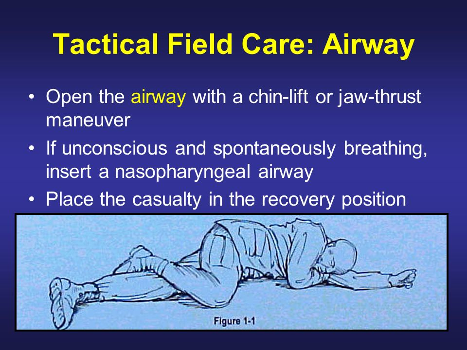 Tactical Field Care: Airway