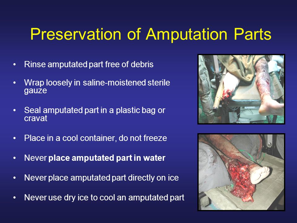 Preservation of Amputation Parts