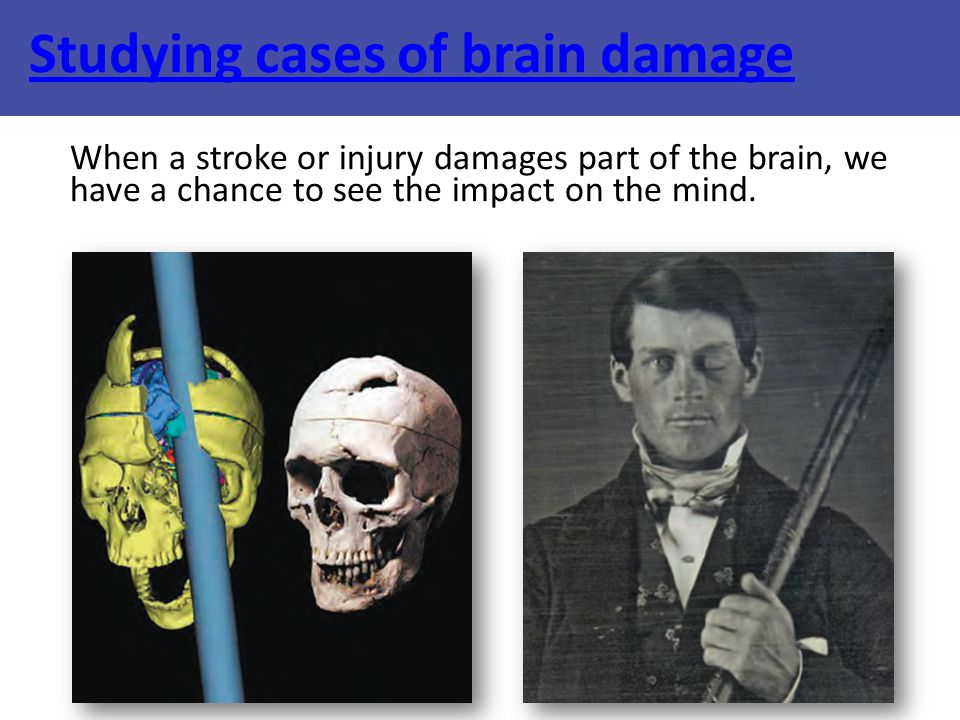 Studying cases of brain damage