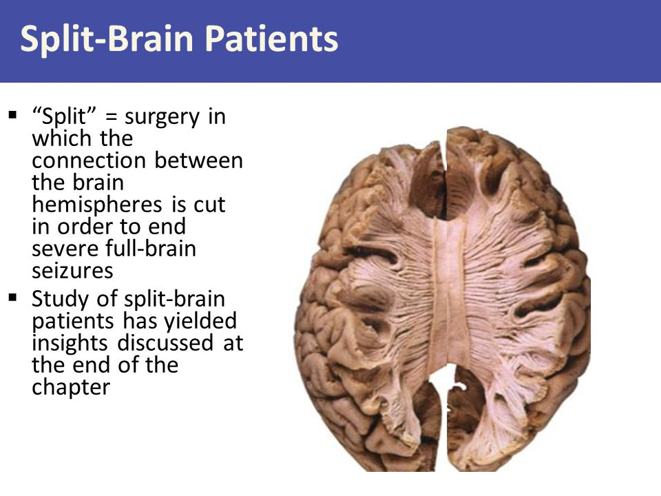 Split-Brain Patients Split = surgery in which the connection between the brain hemispheres is cut in order to end severe full-brain seizures.
