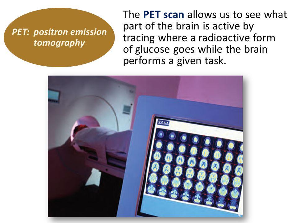 PET: positron emission tomography