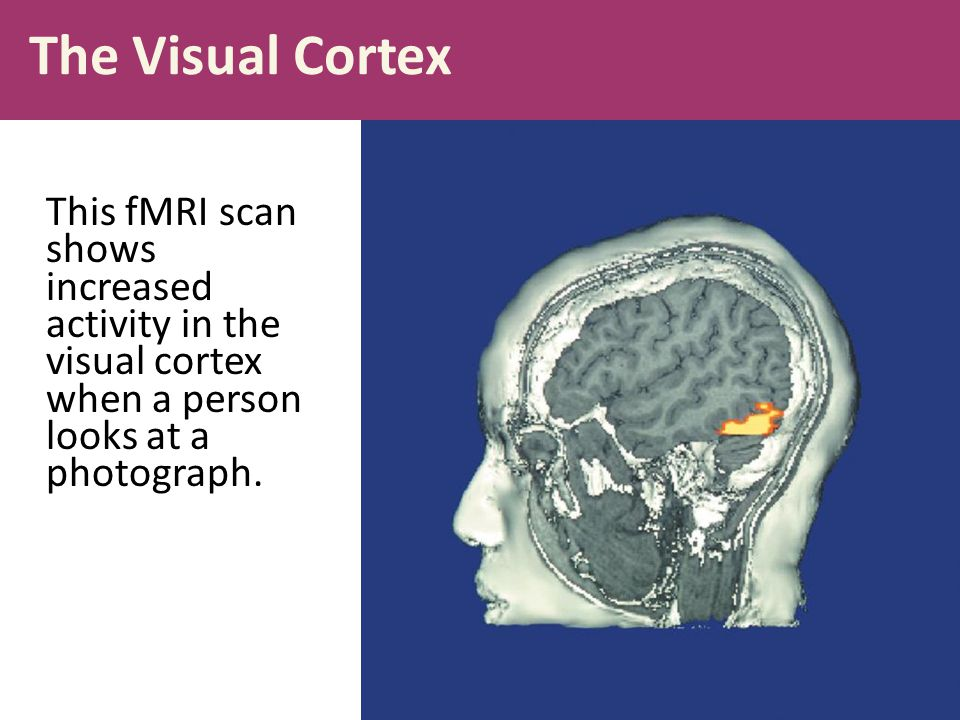 The Visual Cortex This fMRI scan shows increased activity in the visual cortex when a person looks at a photograph.