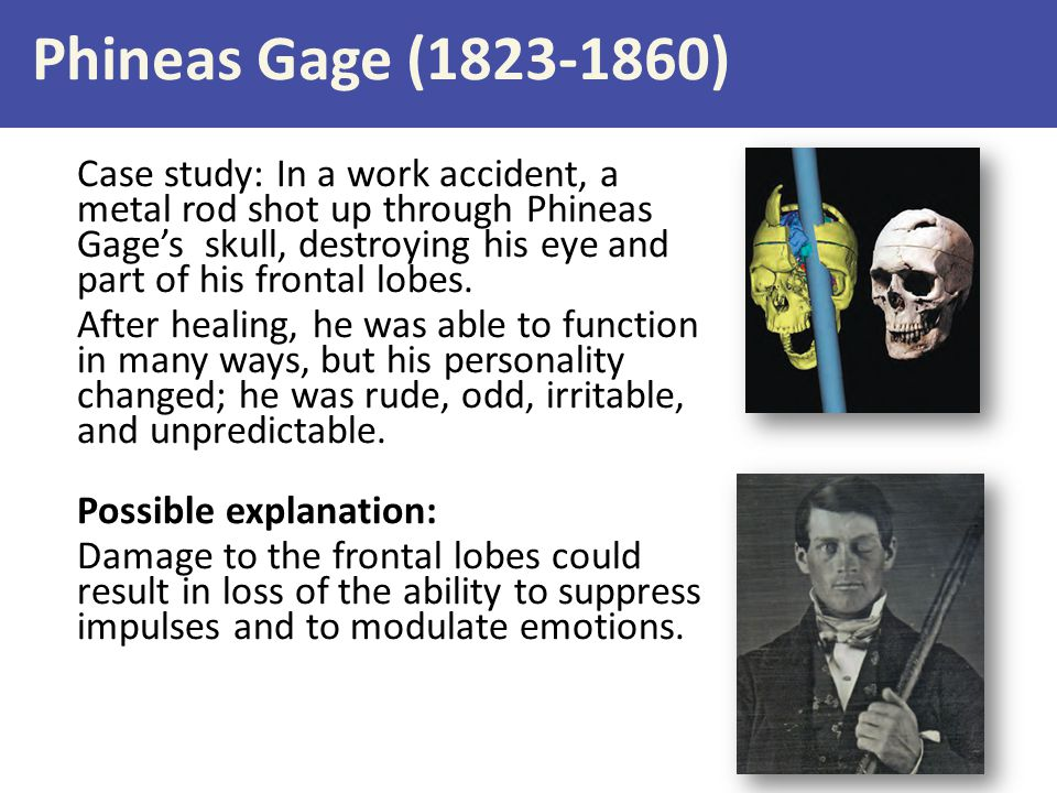 Phineas Gage (1823-1860)