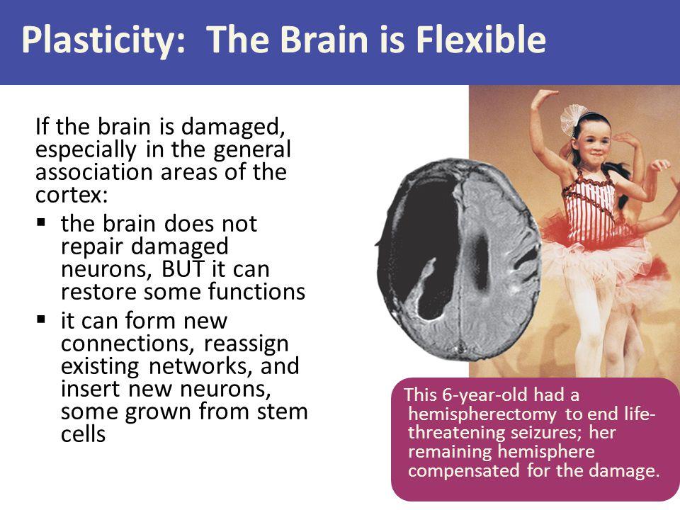 Plasticity: The Brain is Flexible