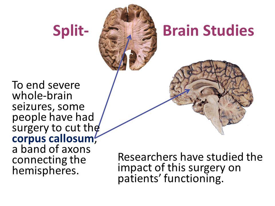 Split- Brain Studies.
