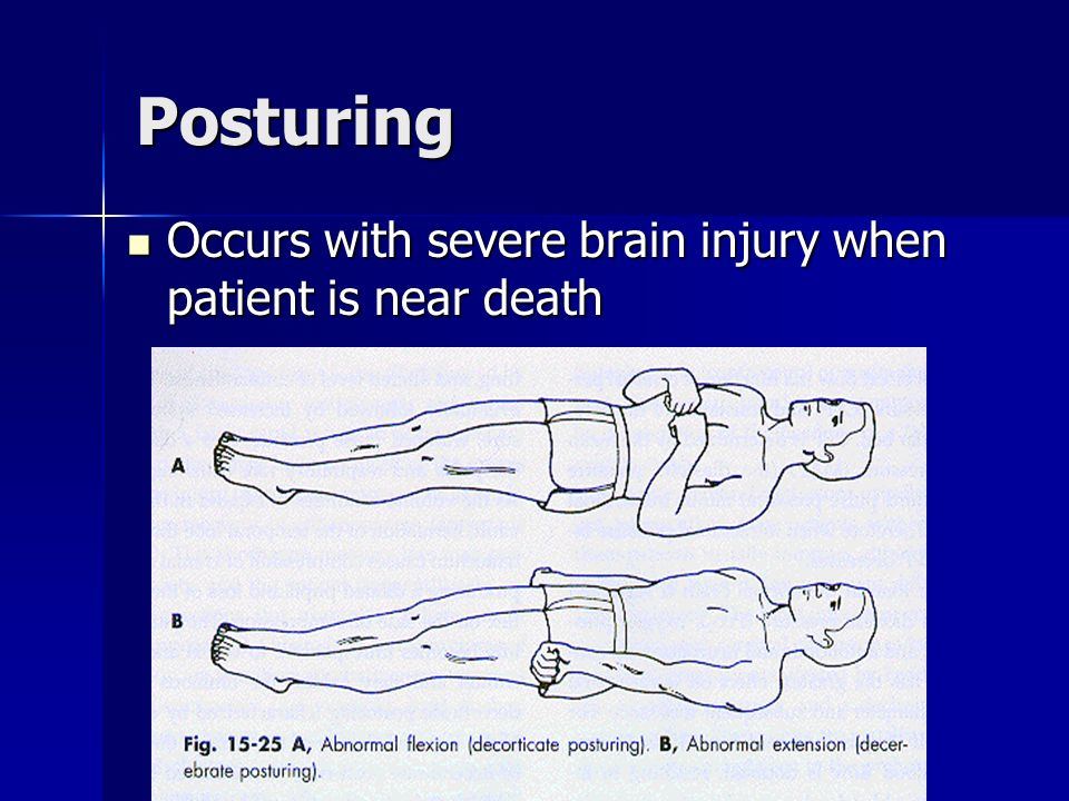 Posturing Occurs with severe brain injury when patient is near death