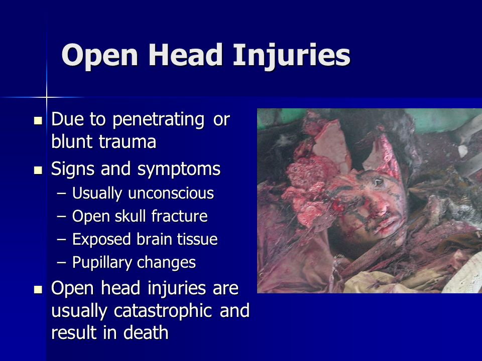 Open Head Injuries Due to penetrating or blunt trauma