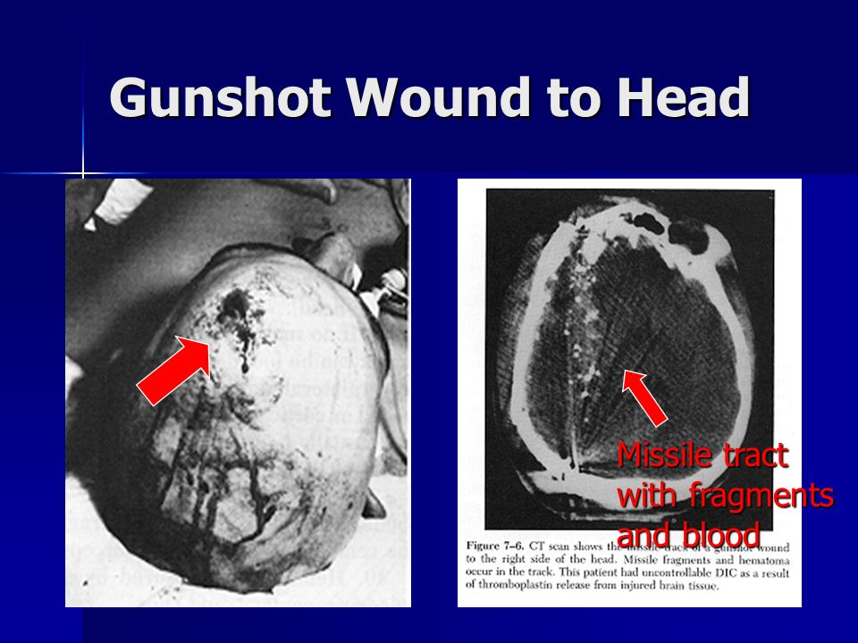 Gunshot Wound to Head Missile tract with fragments and blood