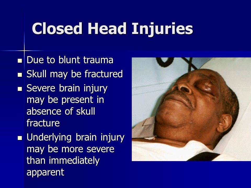 Closed Head Injuries Due to blunt trauma Skull may be fractured