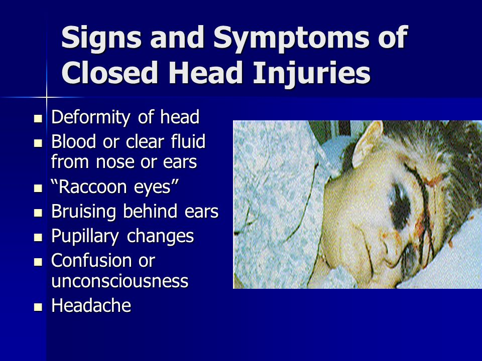Signs and Symptoms of Closed Head Injuries