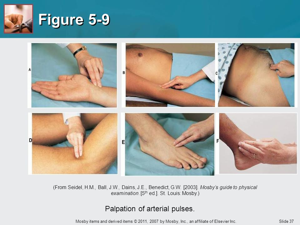 Palpation of arterial pulses.