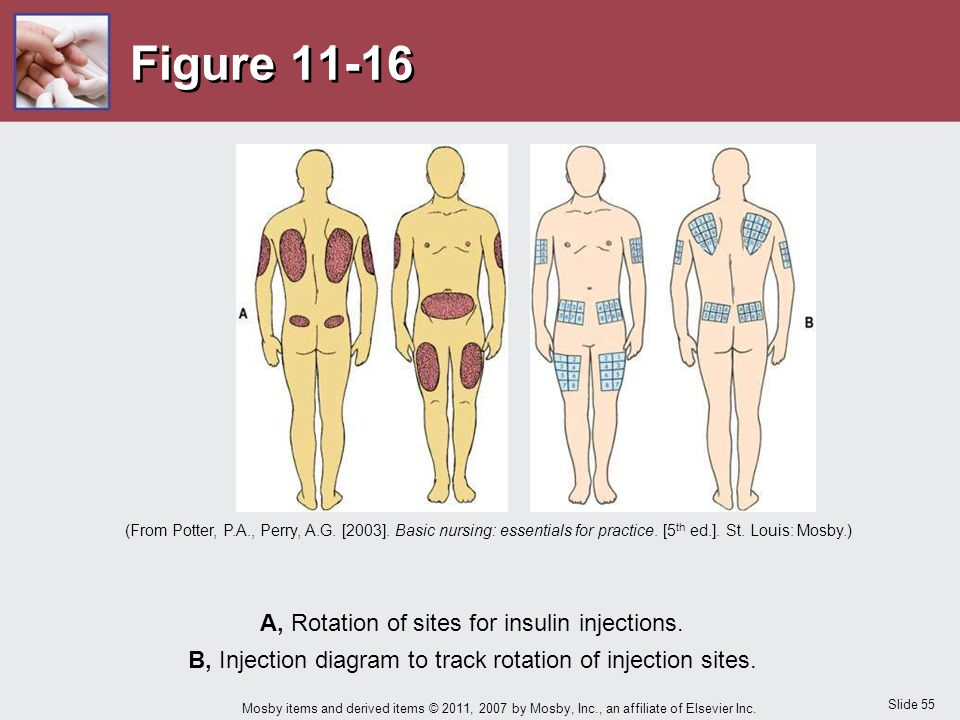 Figure 11-16 A, Rotation of sites for insulin injections.