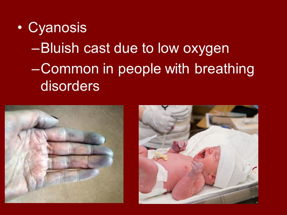 Cyanosis Bluish cast due to low oxygen Common in people with breathing disorders