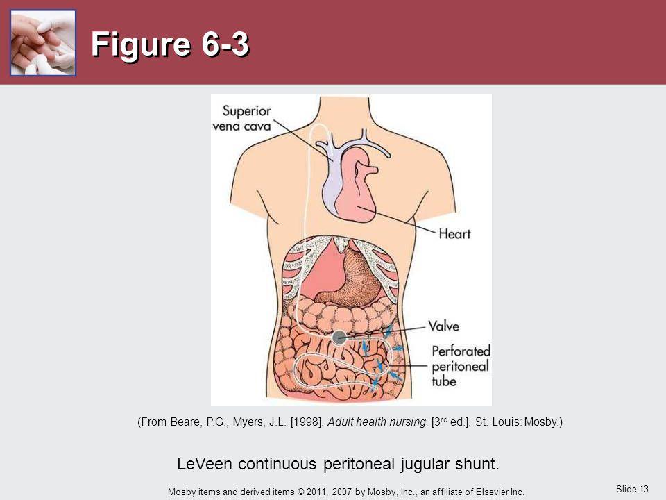 LeVeen continuous peritoneal jugular shunt.
