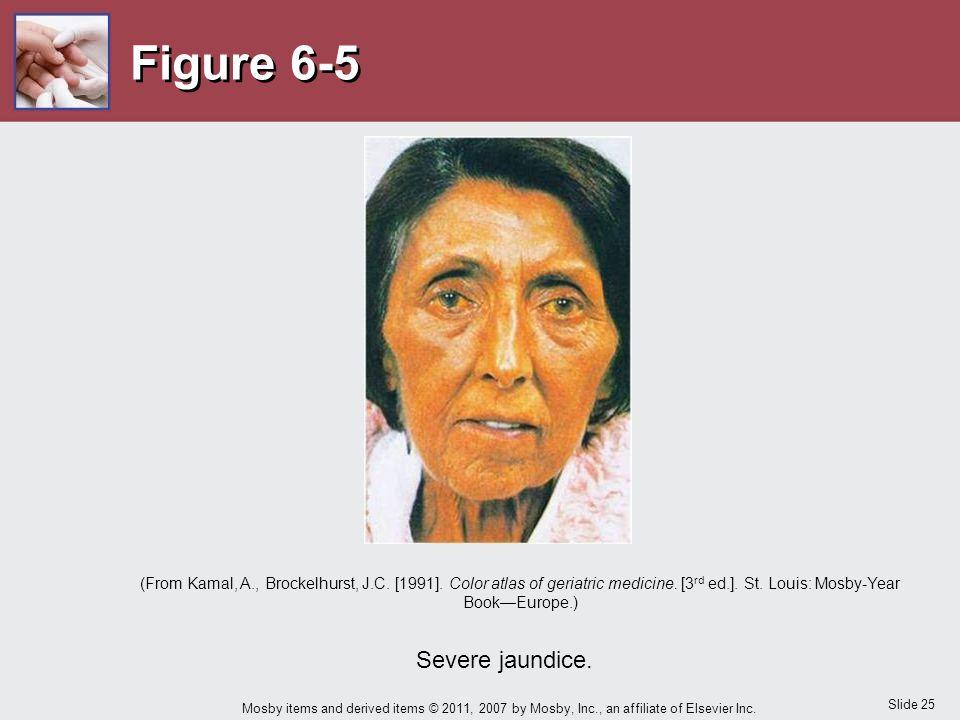 Figure 6-5 Severe jaundice.
