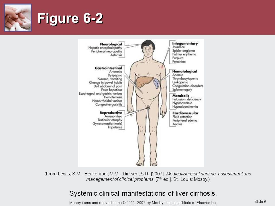 Systemic clinical manifestations of liver cirrhosis.